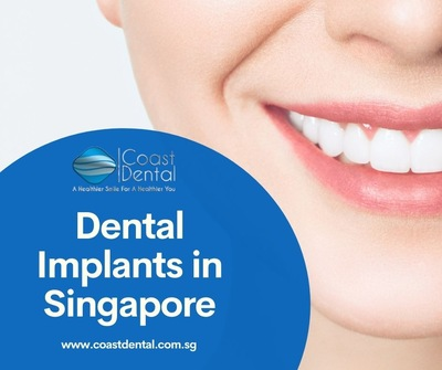 Dental implants - Replacing the missing tooth